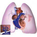 heart specialist in Pune